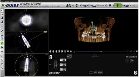 X-guide screen - Dr. Sullivan planning thee guided implant placement