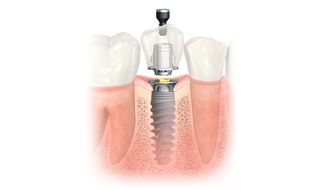 Clackamas Dental Implants diagram with exploded & assembled views.