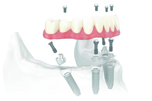 The Benefits of Getting Dentures On Your Implants
